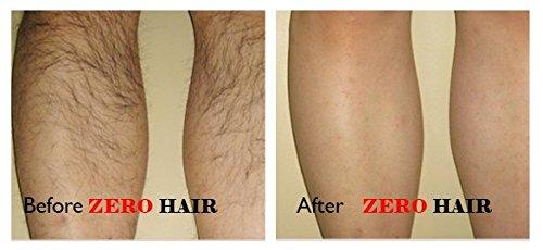 Crema depiladora antes despues